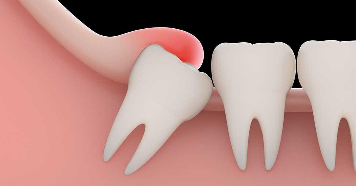 5 Consejos Para Calmar El Dolor De Las Muelas Del Juicio Centro Dental Pereda