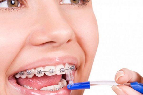 ¿Qué ortodoncia recomendamos desde nuestra clínica dental en Toledo?