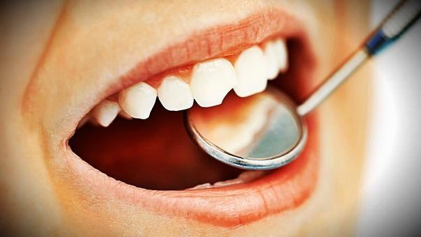 10 mitos sobre el cuidado de tu salud bucal que debes conocer