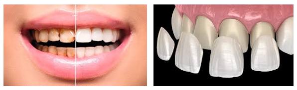 Carillas tratamiento dental